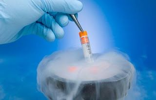 Cryopreservation of Gametes